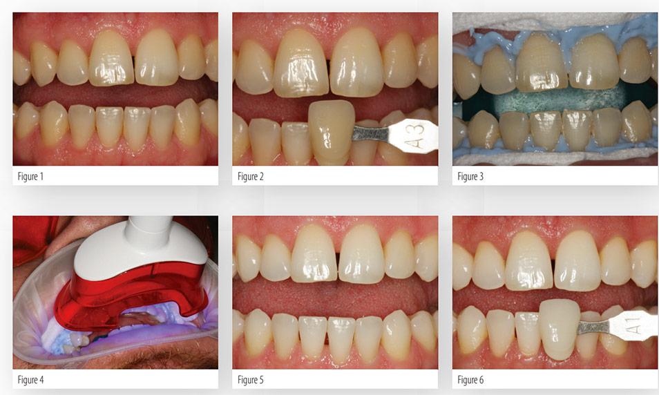 Professional Teeth Whitening In Aurora Co Panorama Dental
